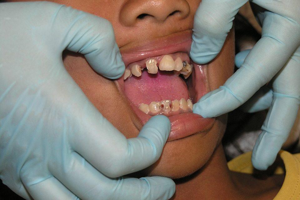 Próchnica – choroba nie tylko zębów